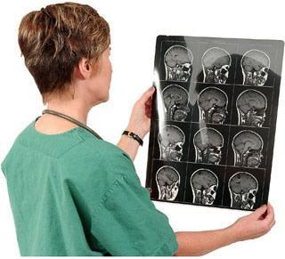 Ученые пронаблюдали посредством МРТ поведение мозга при «плохом» поведении человека