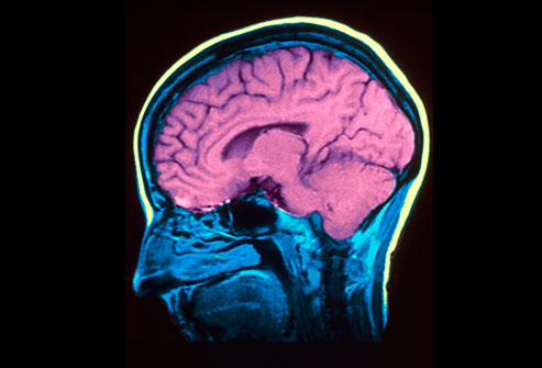 Ученые внесли ясность в природу уменьшения головного мозга при депрессии