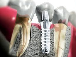 Все о имплантации зубов