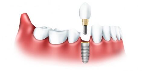 Положительные стороны зубного протезирования