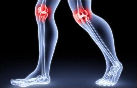 Как предотвратить появление остеоартроза?