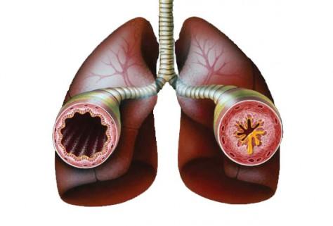 Гормонозависимая бронхиальная астма чаще сопровождается депрессией