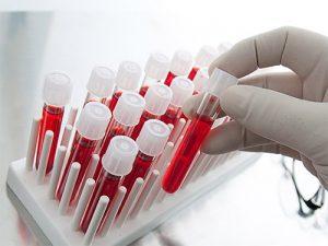 Депрессию диагностируют с помощью анализа крови