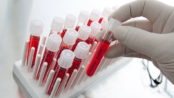 Разработан тест, предсказывающий эффективность антидепрессантов