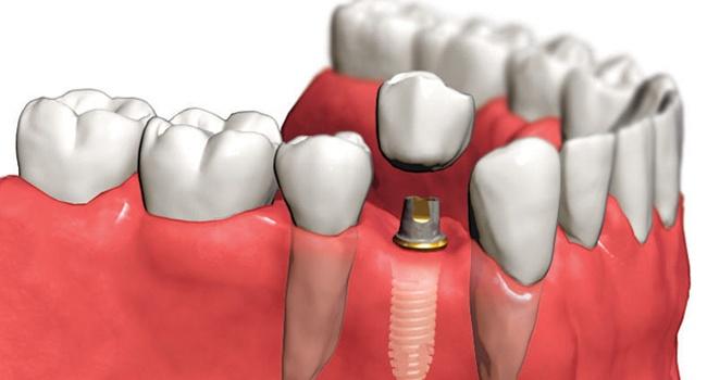 Какие осложнения могут возникнуть при имплантации зубов?