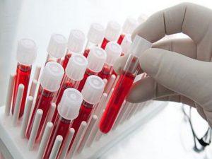 Депрессию можно будет диагностировать по анализу крови