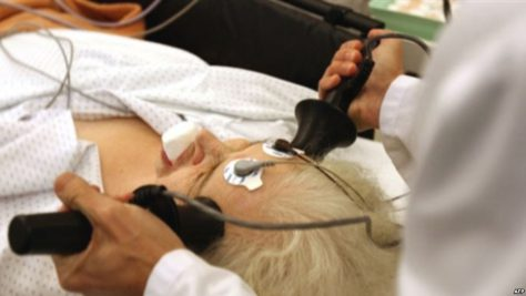 Электрошоковая терапия перезагружает мозг при депрессии