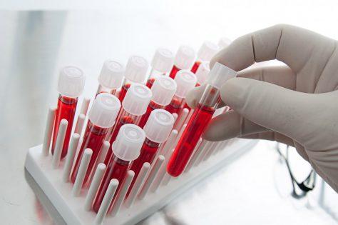 Анализ крови помогает диагностировать депрессию