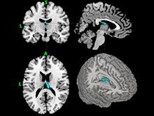 Новый метод поможет оценить риск развития депрессии