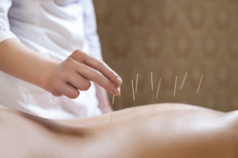 Иглоукалывание — древнейшая терапия