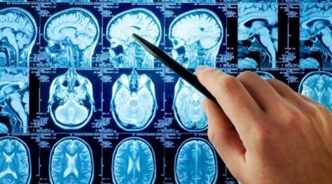 Ученые узнали, что может грозить человеку Альцгеймером