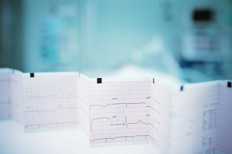 Диагностировать депрессию поможет кардиограмма
