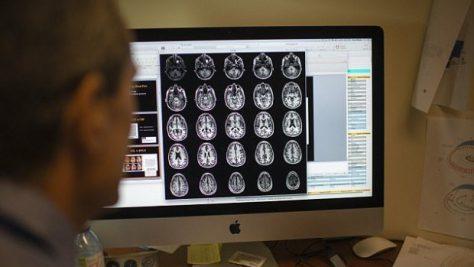 Специалисты научились возвращать потерянные воспоминания при деменции