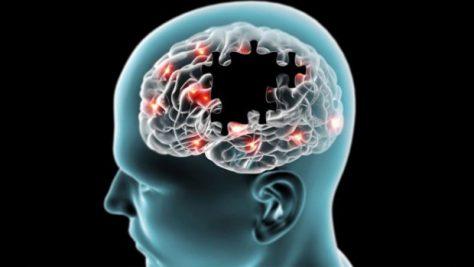 Ученым удалось нейтрализовать ген болезни Альцгеймера в клетках мозга