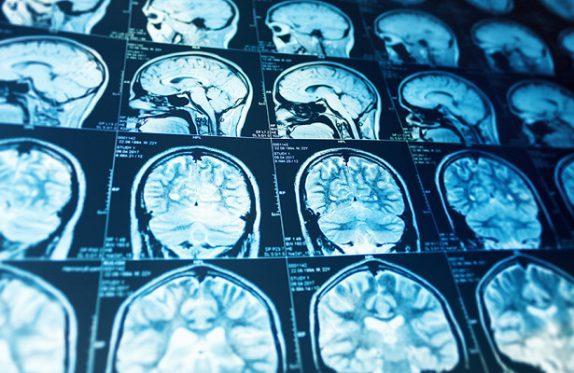 Как остеопатия поможет справиться с депрессией и неврозами: советы врача