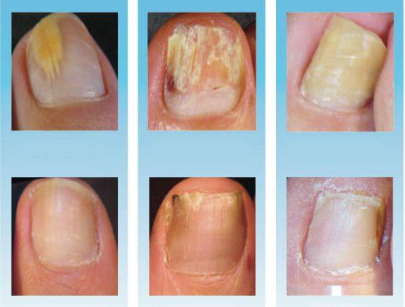 Грибок ногтя на большом пальце ноги: лечение