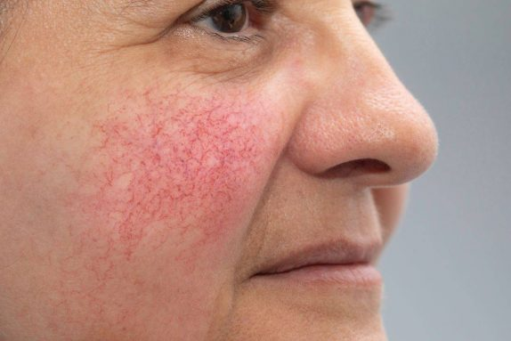 Сосуды на лице: основные причины купероза
