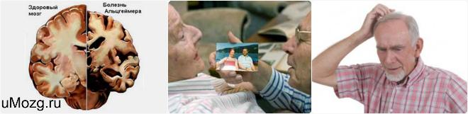 Почему память уходит, или Что собой представляет болезнь Альцгеймера