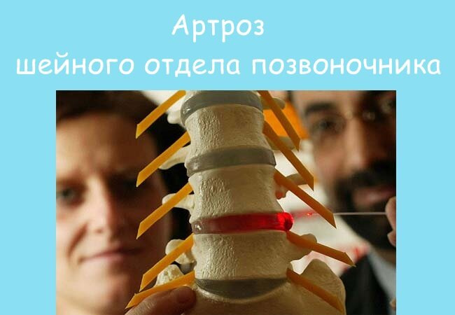 Симптомы и лечение артроза шейного отдела позвоночника