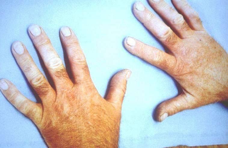 Вибрационная болезнь
