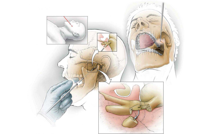 Невралгия тройничного нерва — симптомы