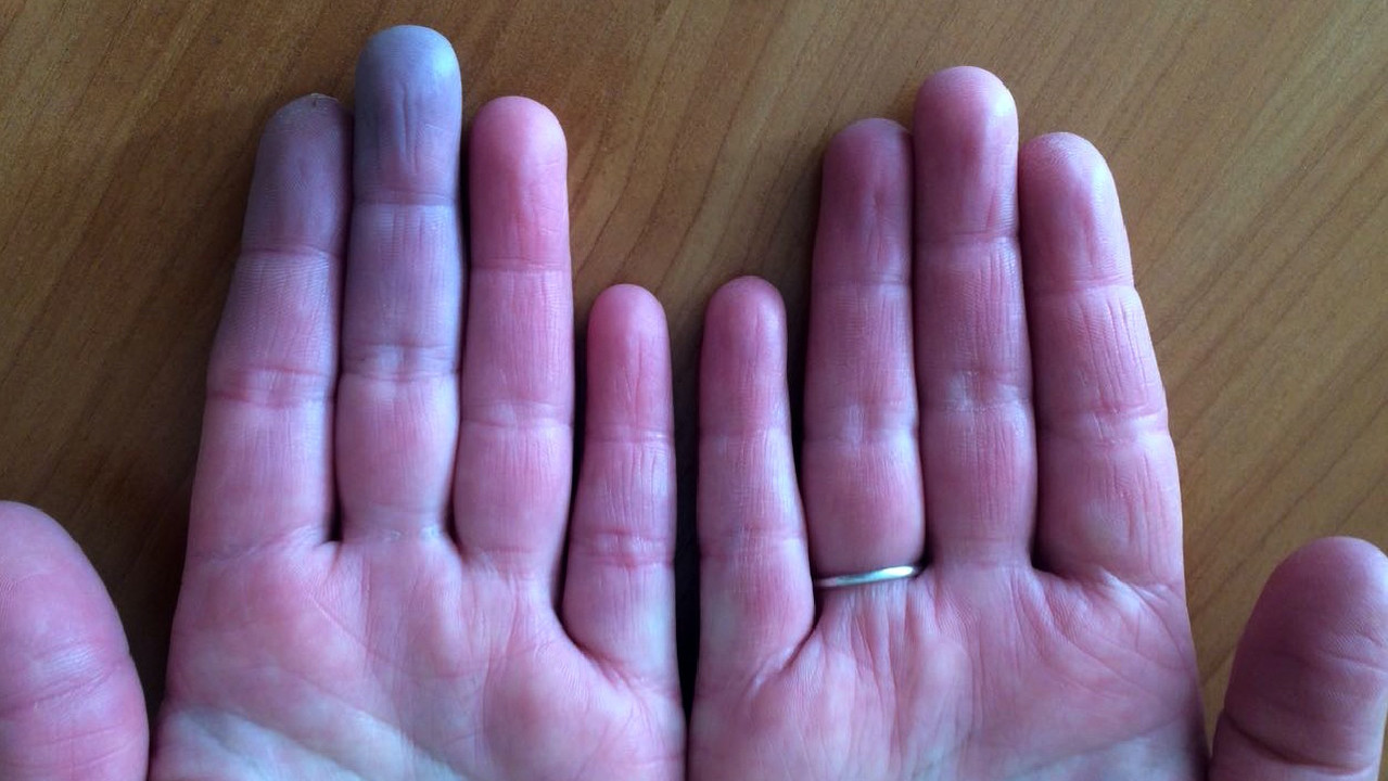 Симптомы, диагностика и лечения болезни Рейно
