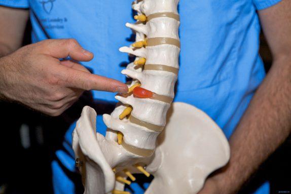 Методы лечения грыжи диска