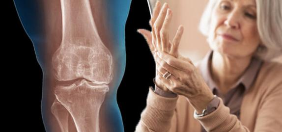 5 ранних признаков артрита, которые надо знать в любом возрасте