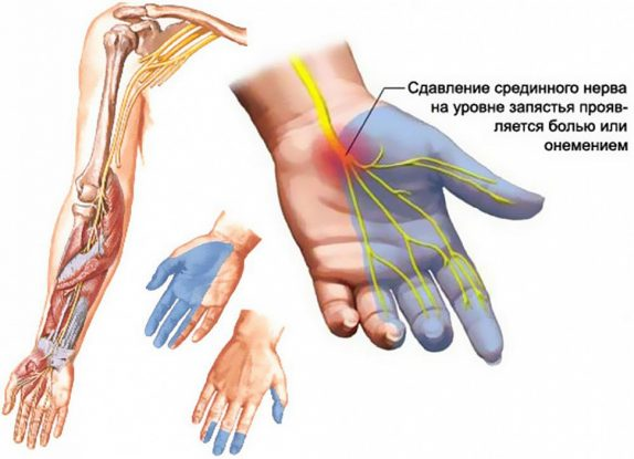 Нейропатия верхних конечностей